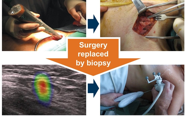 SentiGuide replaces surgery by biopsy