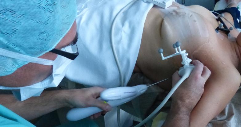 SentiGuide biopsy
